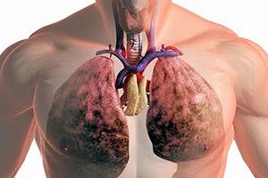 Что такое туберкулез легких?