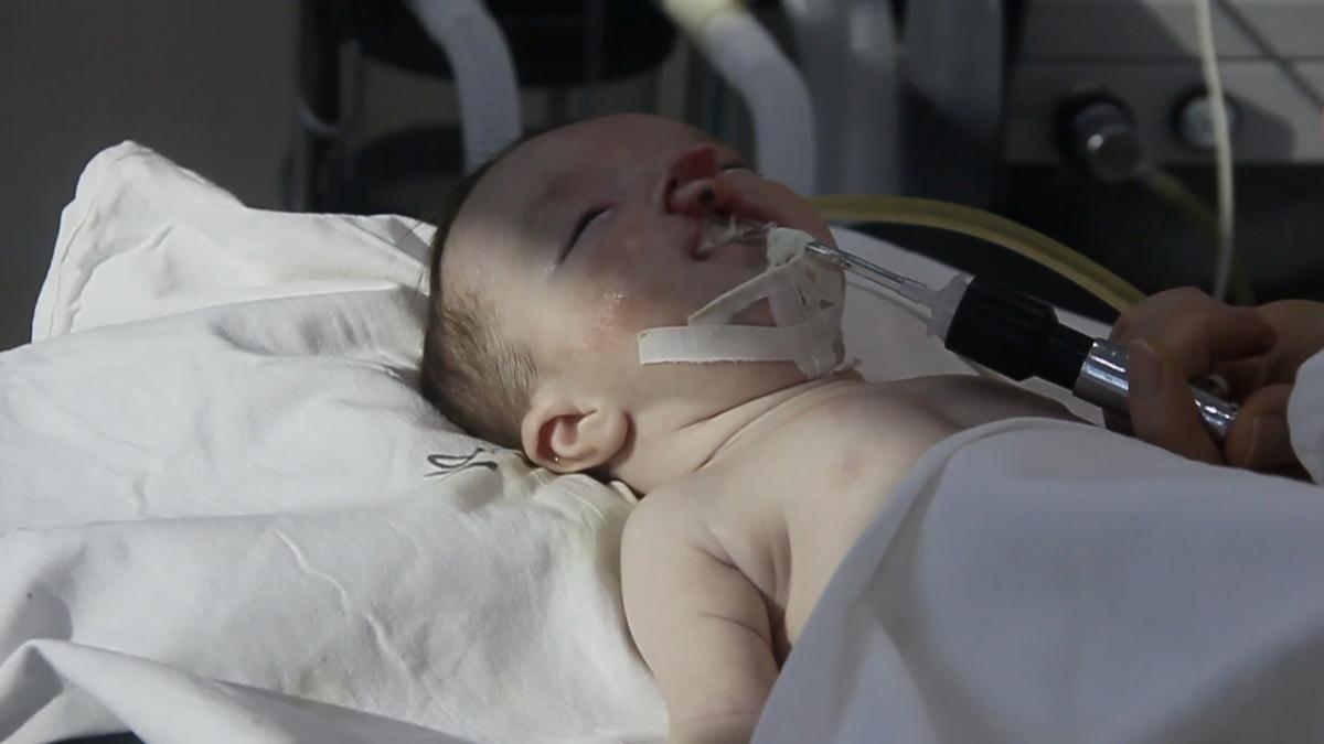 Дагестанские  хирурги избавляют детей от тяжелейших врожденных дефектов с помощью высоких технологий