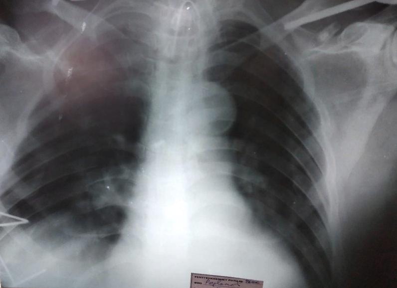 В Дагестане изобретен новый метод лечения тяжелого перелома грудной клетки