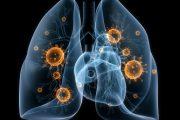 Роспотребнадзор: ситуация с туберкулезом в Дагестане продолжает оставаться напряженной