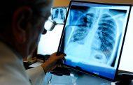 Минздрав России: в Дагестане самые низкие показатели по заболеваемости раком