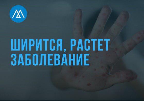 В Дагестане зафиксирован резкий рост заболеваемости корью
