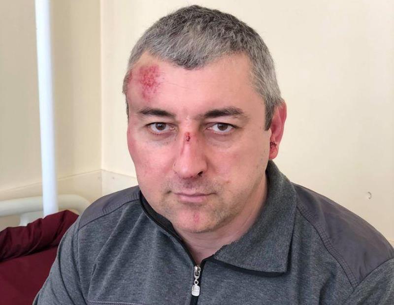 Возбуждено уголовное дело по факту нападения на Сиражутдина Дациева